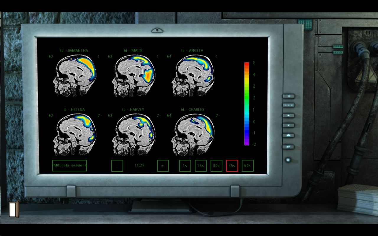 Gray Matter Windows Analysing brain scans...